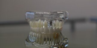 ile kosztuje proteza zębowa